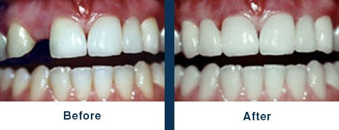 Dental Implants, Manhattan Beach