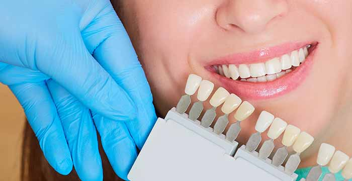 Veneers for your teeth are a smart investment, says Manhattan Beach, CA, dentist