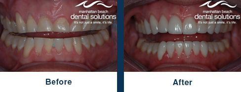 Gum Lift and Veneers