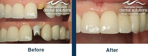 Dental Implants and Implant Crown