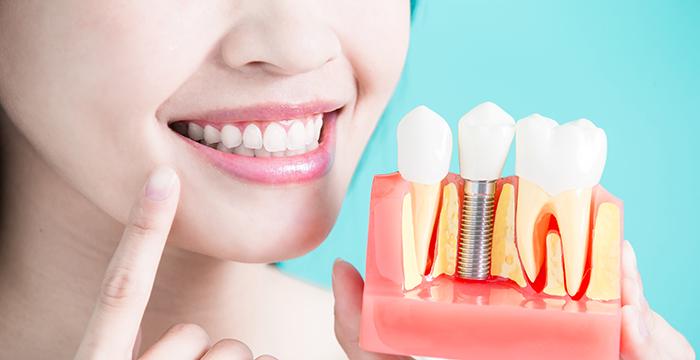 Dental Implants near Manhattan Beach, CA