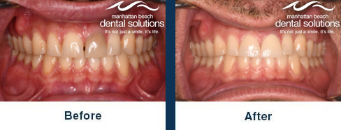 Oral Retractors Before & After Results