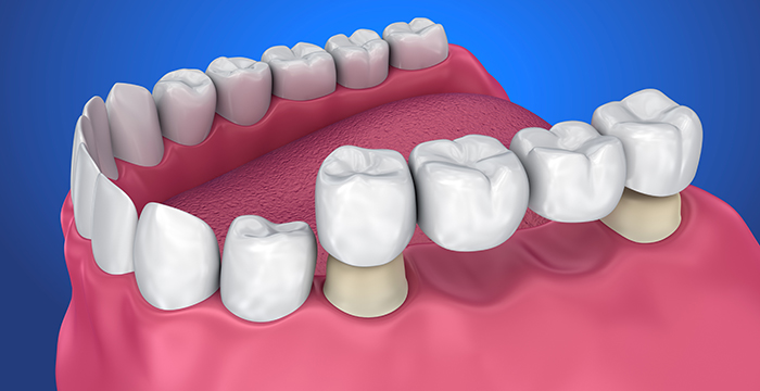 Dental Bridges - Manhattan Beach, CA