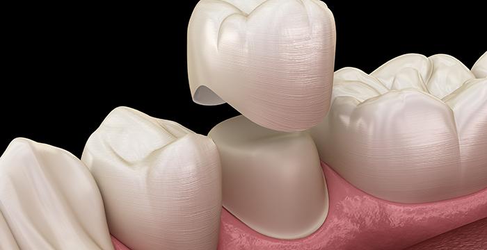 Dental Crowns near Manhattan Beach, CA