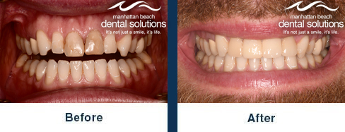 Porcelain Crowns Before & After Results