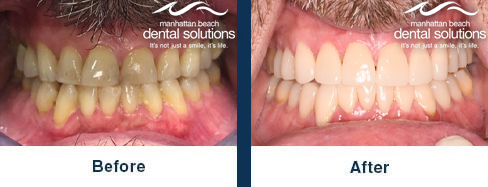 Deep cleaning, Invisalign & Veneers Before & After Results
