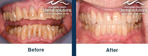 Porcelain Veneers Before & After Results
