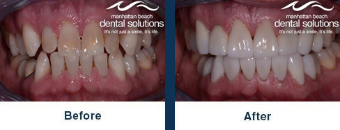 Porcelain Veneers Before & After Results