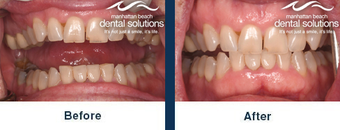 Whitening & Porcelain Veneers Before & After Results
