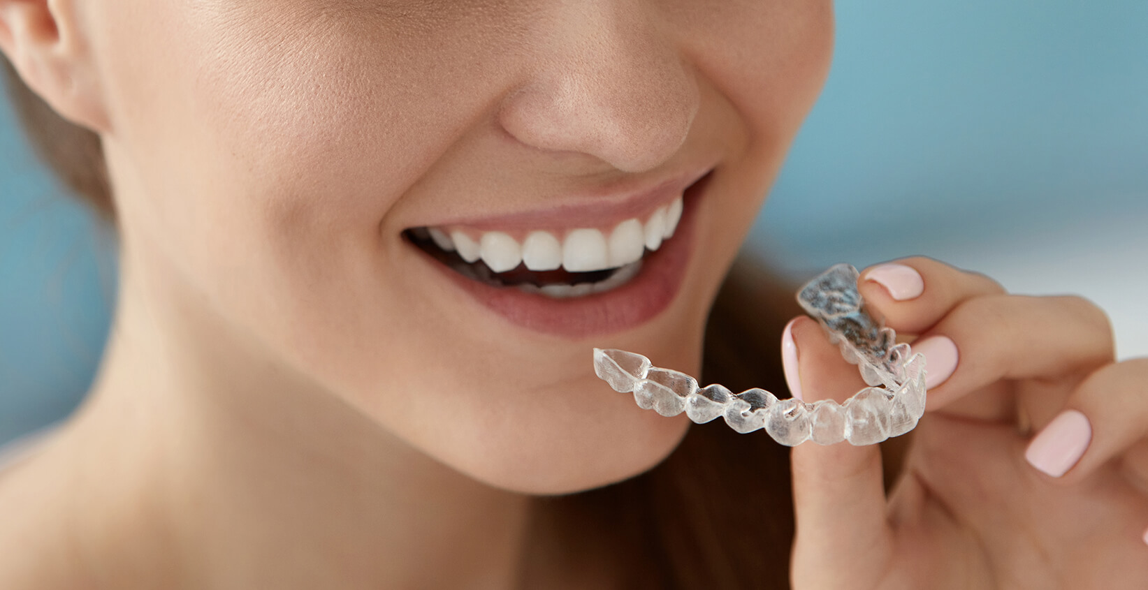 Why Choose Clear Teeth Aligners Over Other Teeth Straightening Options in Manhattan Beach, CA?