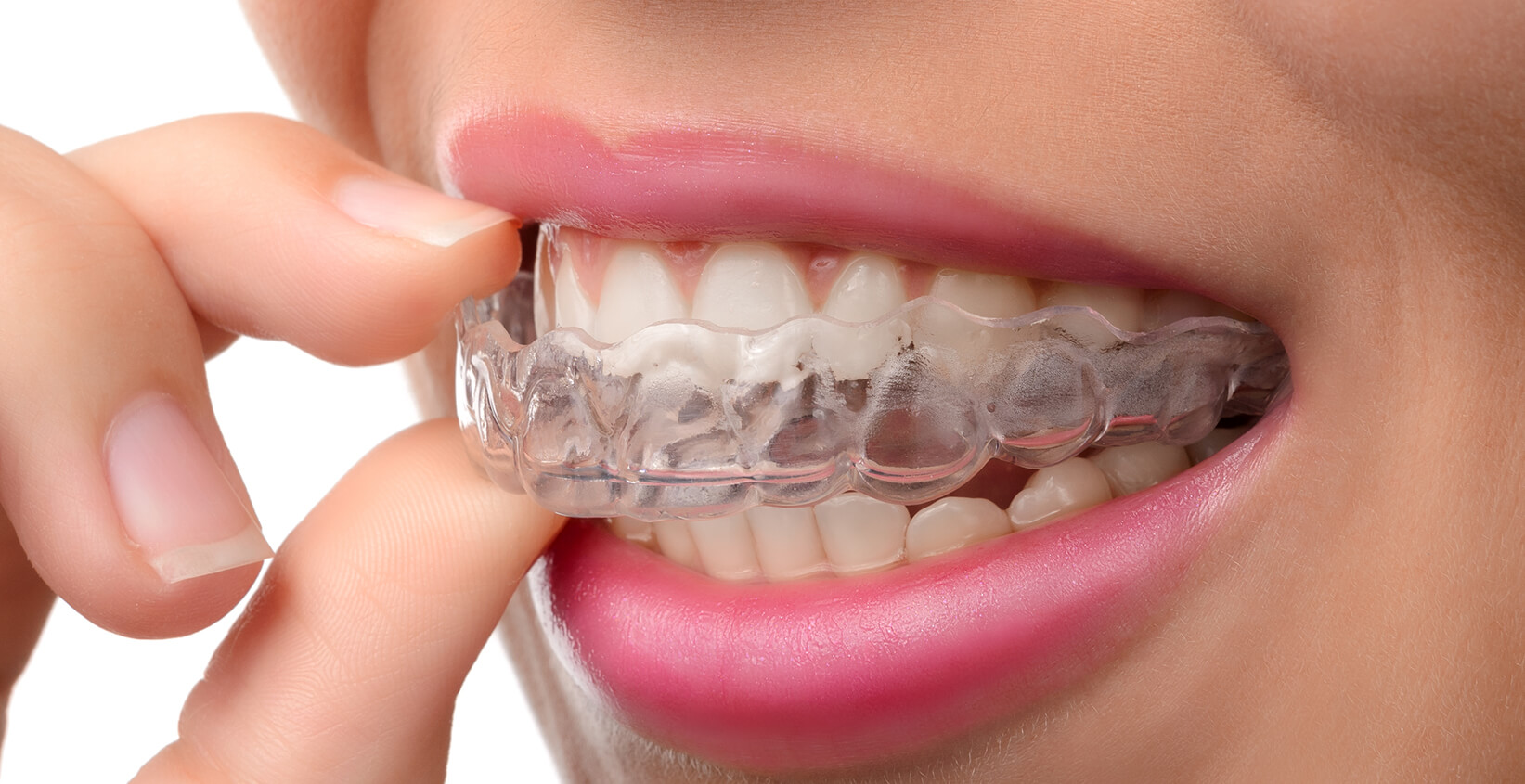 Tips For Invisalign Care Given By Dentist In Manhattan Beach CA Area