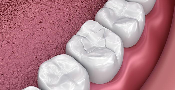Tooth-Colored Fillings, At Manhattan Beach Dental Solutions in Manhattan Beach, CA
