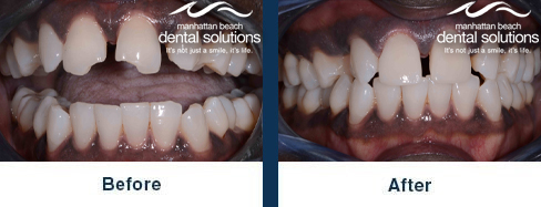 Chipped Front Teeth Before & After Results