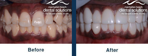 Crowns and Veneers Before & After Results