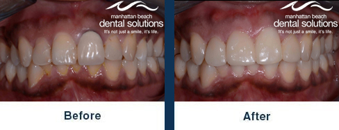 Two Porcelain Crowns Before & After Results