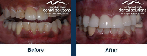 Front Crowns Before & After Results