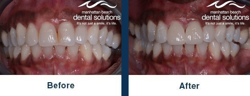 Discolored Front Teeth Before & After Results