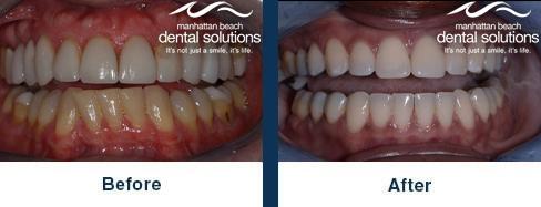 Veneers Before & After Results